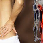 本当に坐骨神経痛を知ってますか?